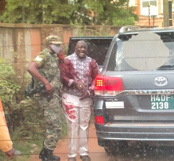 Ugandan General Injured As Gunmen Sprayed His Land Cruiser SUV, Daughter, Driver Killed - autojosh